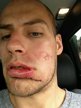 After getting hit by a puck in 2014 playoffs